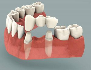 dental-bridge-basic-info
